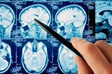 Итальянский суд признал, что мобильный телефон вызвал опухоль мозга у служащего